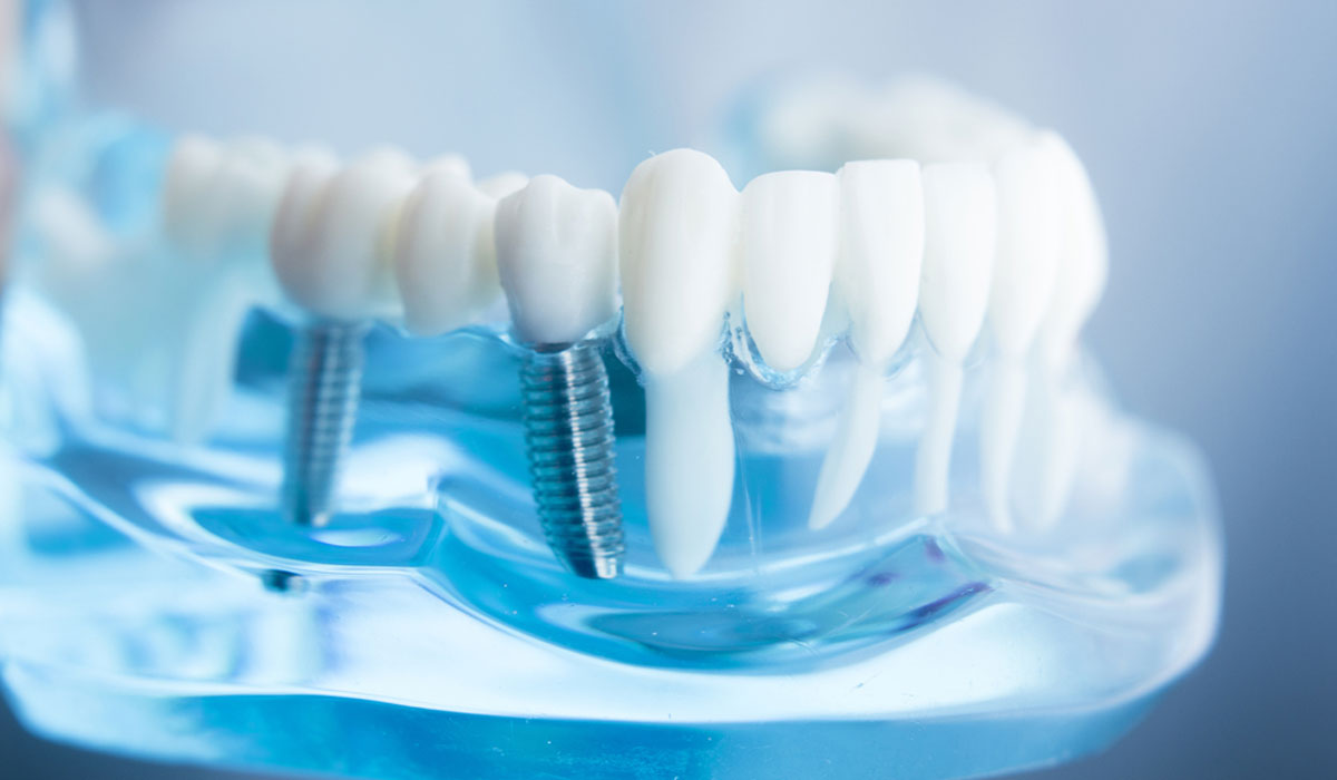 Dental implants without surgery in Algeria, on Echourouk TV