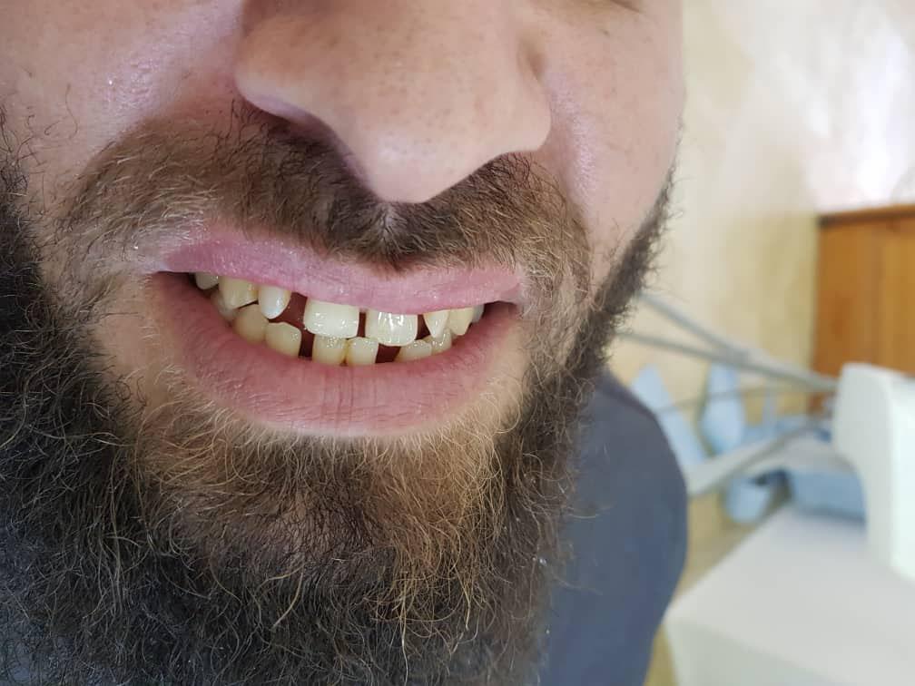photo de cas apres implants dentaires algerie alger clinique dentaire ain taya