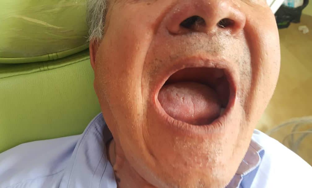 photo de cas dents manquantes avant implants dentaires algerie alger clinique dentaire ain taya