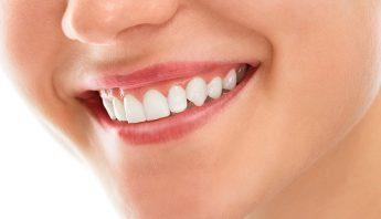 Blanchiment Dentaire, Comment Se débarrasser des dents jaunes ?