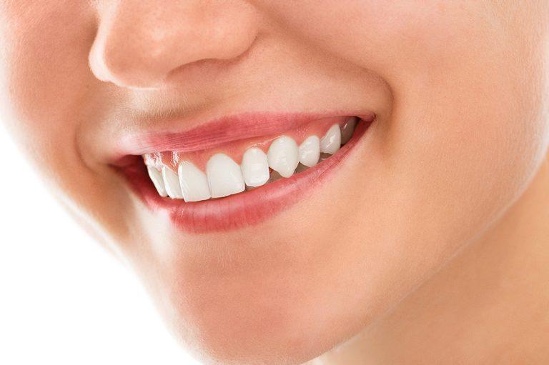 blanchiment dentaire Algérie Alger Ain Taya clinique dentaire smile again