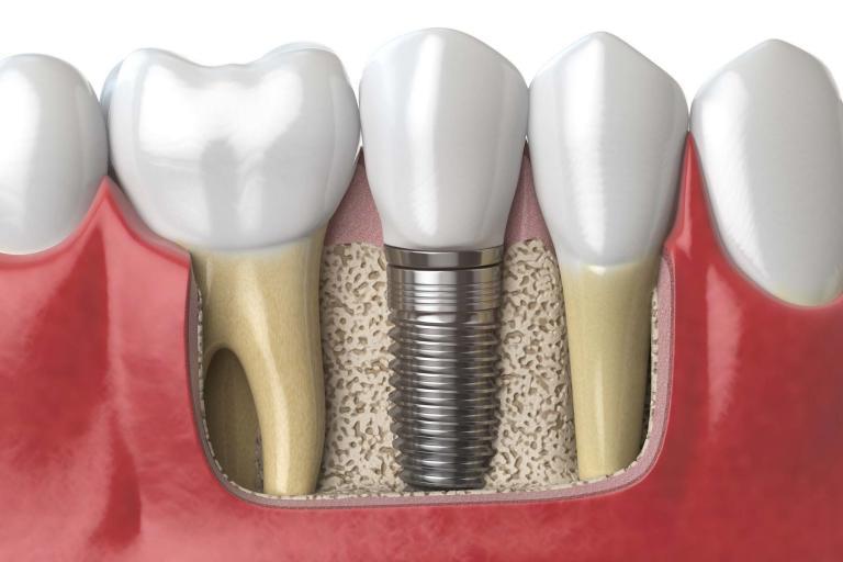 formations pour dentistes en implantologie IBS SYSTEM