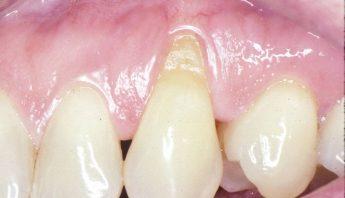 Le déchaussement dentaire, Causes, symptômes et traitement