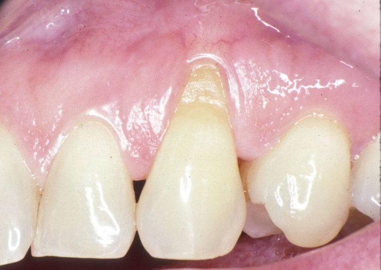 le déchaussement dentaires (recession gingivale) causes symptômes et traitement