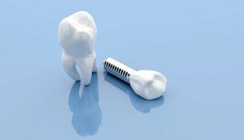 Remplacer une dent manquante